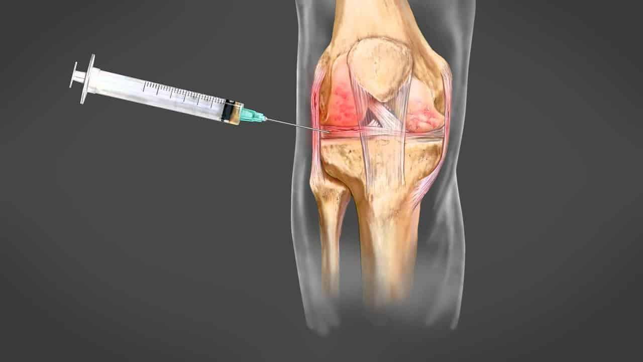 Θεραπεία Τενοντίτιδας Γόνατος με PRP