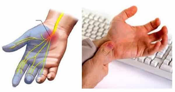 Ενδοσκοπική Θεραπεία Συνδρόμου Καρπιαίου Σωλήνα