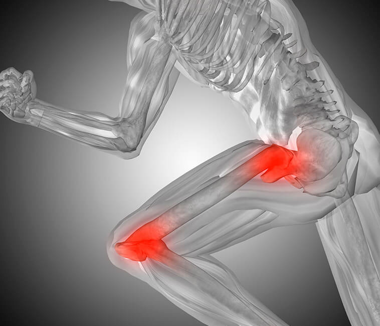 Τα οφέλη της ρομποτικής αρθροπλαστικής ισχίων-γόνατος