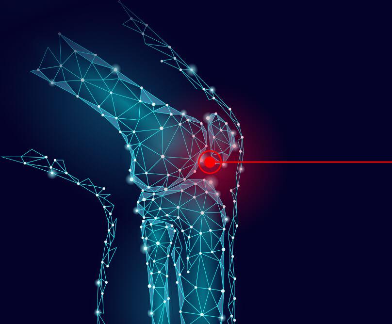 Ολική αρθροπλαστική γόνατος: ανάρρωση, φυσικοθεραπεία, διατροφή και άθληση μετά την κλασική ή τη ρομποτική επέμβαση