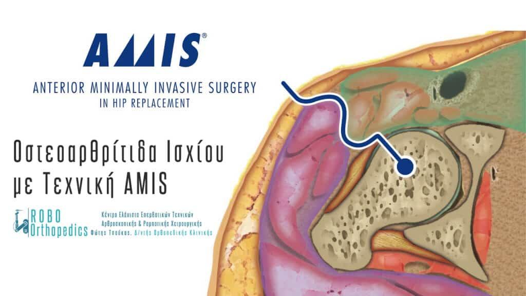 Ολική Αρθροπλαστική Ισχίου AMIS
