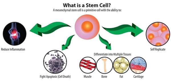 Οστεοαρθρίτιδα γόνατος Βλαστοκύτταρα