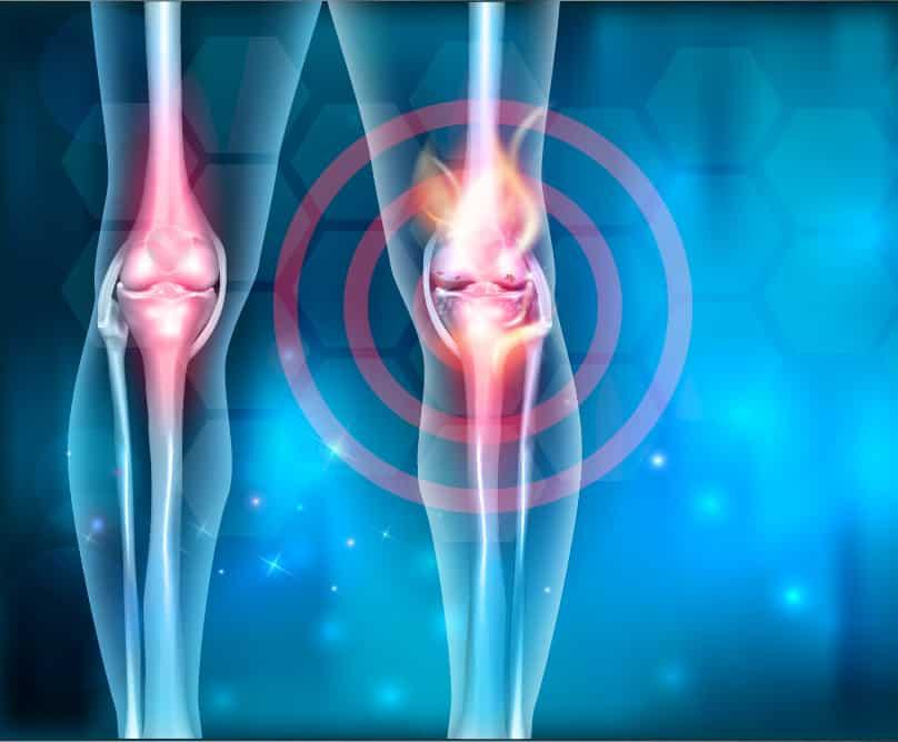 12 μύθοι για την οστεοαρθρίτιδα, που δεν πρέπει να πιστεύουμε