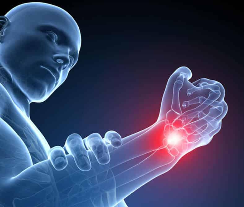 Σύνδρομο Καρπιαίου Σωλήνα: κρίσιμοι παράγοντες για τη θεραπεία